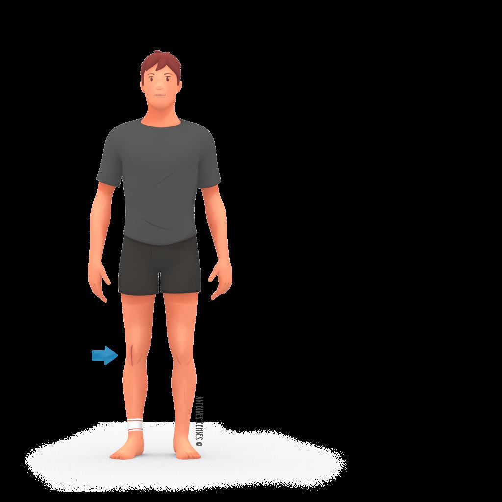 Prothese de genou