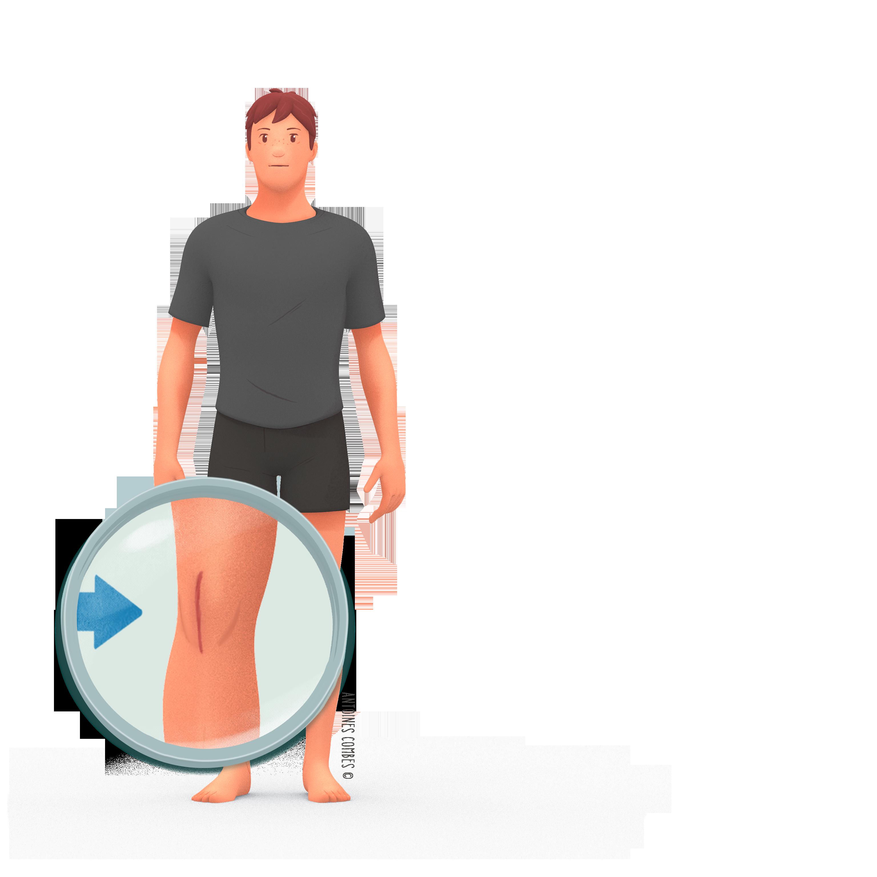 Prothese de genou zoom