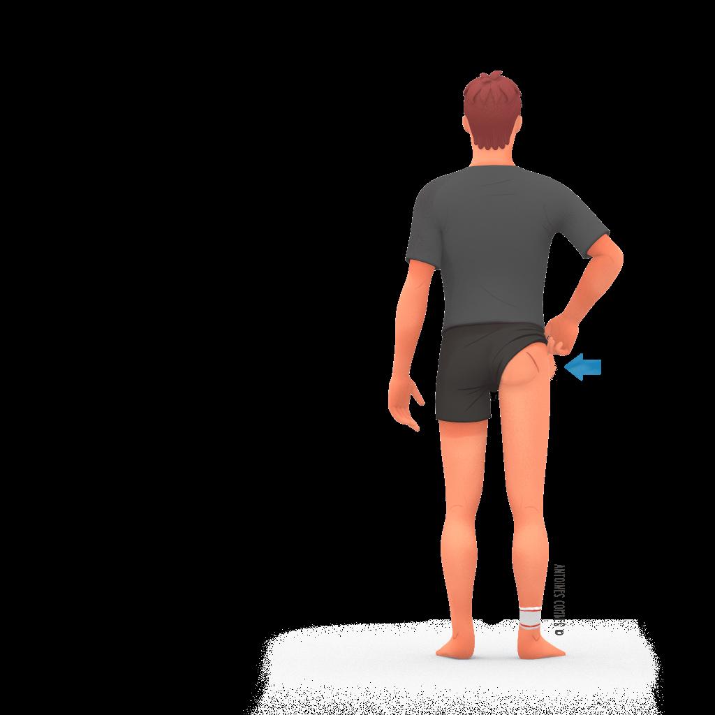 prothese de hanche Voie post