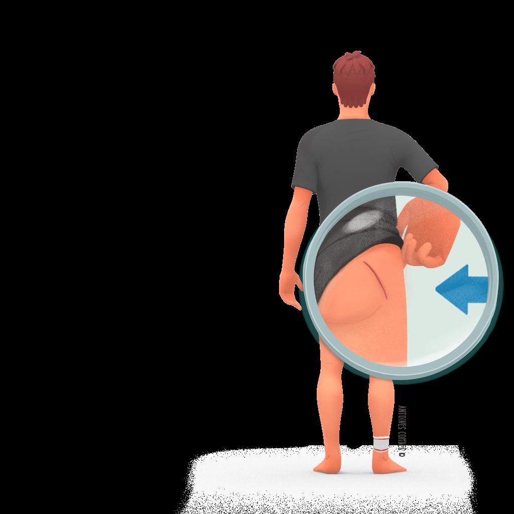 prothese de hanche vois post Voie post zoom