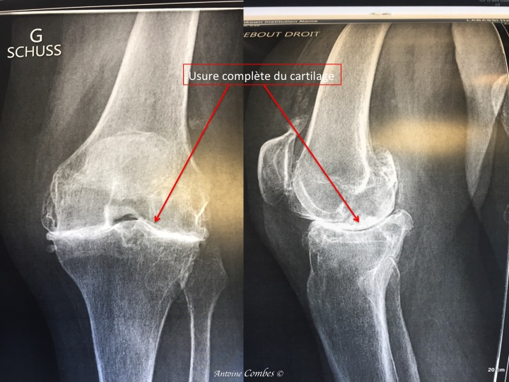 Arhrose évoluée du genou