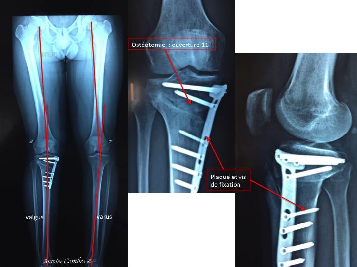 Radiographie d'une correction par OTV. La légère surcorrection (-4°)  est idéale afin de pérenniser le résultat