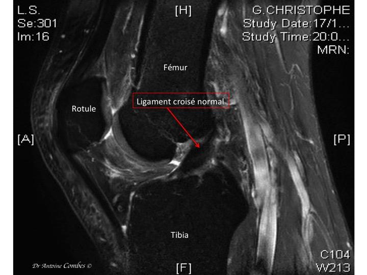 IRM d'un LCA normal; l'apect est noir bien continu, orienté à 45°