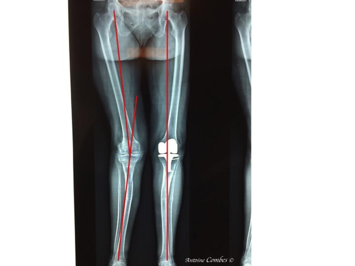 réaxation du membre par la prothèse totale de genou