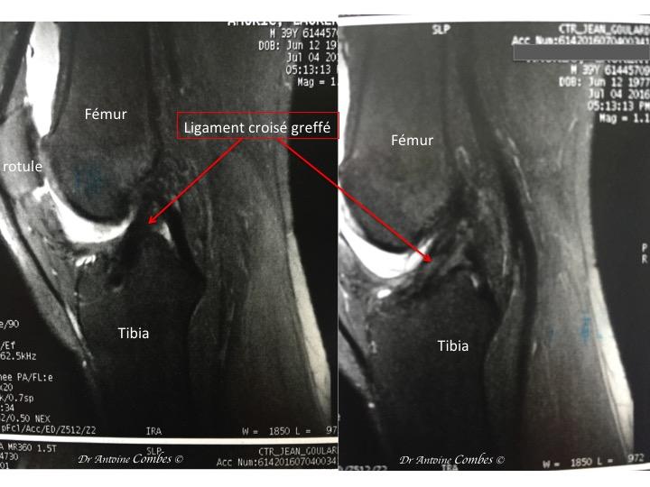 LCA greffé, 1 an après la chirurgie. Aspect IRM