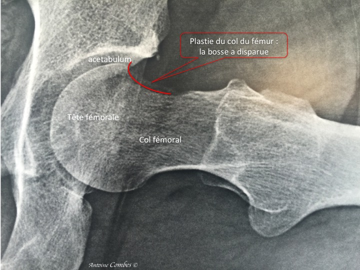 Radiographie d'une plastie du col fémoral