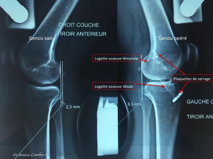 Laxité du genou faible apres reconstruction du LCA