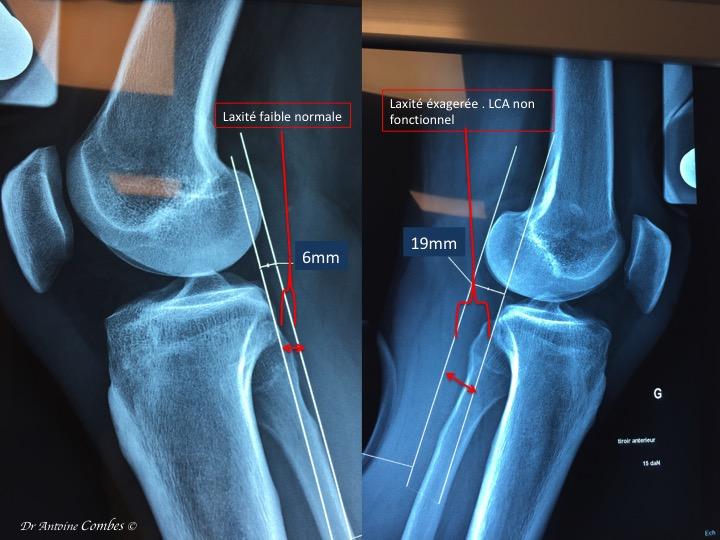 """Laxité ( le """"tiroir antérieur"""" d'un genou sain et d'un genou présentant une rupture ancienne de LCA. Radiographie dynamique.  13 mm de diffrentiel, c'est important, le risque d'instabilité est majeur."""