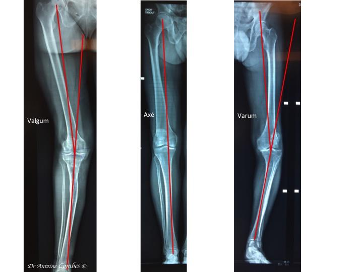 Radiographie des différentes déformation du membre