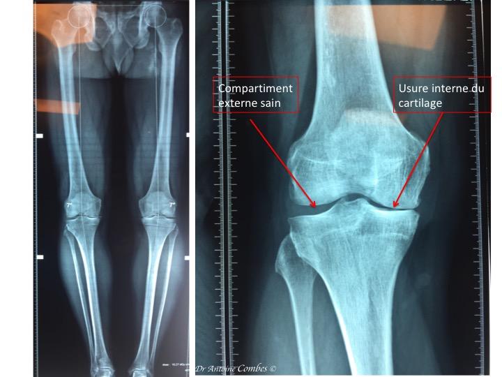 Radiographie d'une usure unicompartimentale