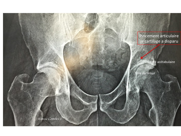 Radiographie de l'arhrose de la hanche gauche d'un sujet jeune