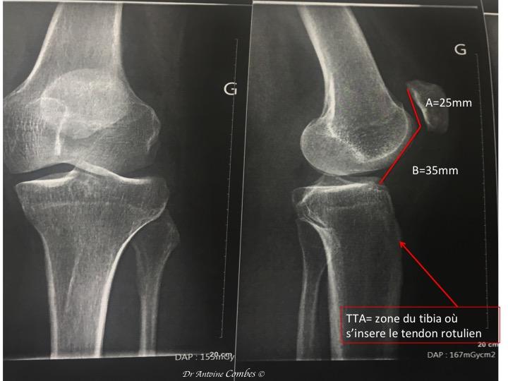 """Radiographie d'une """"rotule haute"""" : A/B>1,2"""