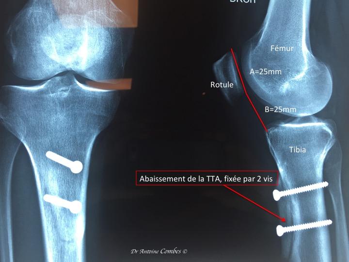 Abaissement de la Tuberosité tibiale antérieure (TTA) . Cela tire sur le tendon rotulien, donc sur la rotule, ainsi elle s'engage mieux dans le rail de la trochlée