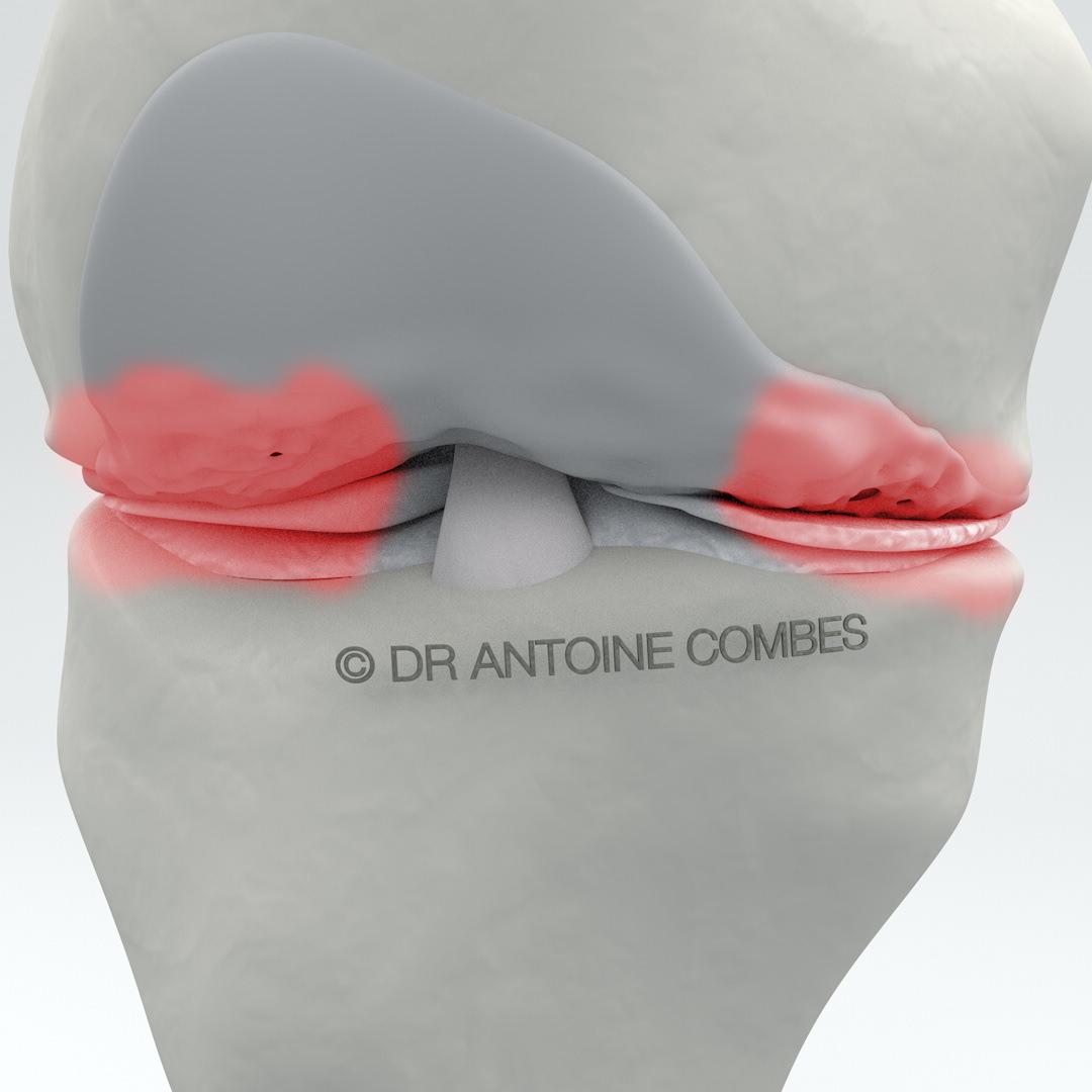 Arthrose = usure du cartilage, ici entre le fémur et le tibia